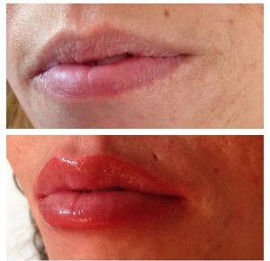 Semi permanent lips