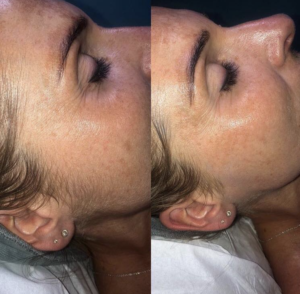 Dermaplaning at The Beauty Rooms Chelmsford